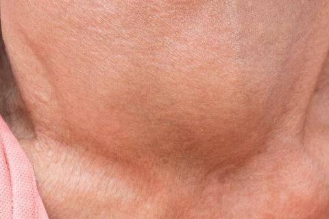 tiroid hastalıkları