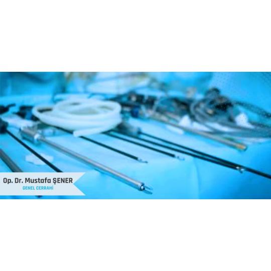Laparoskopik Kist Ameliyatı