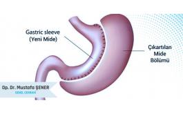 Laparoskopik Tüp Mide Ameliyatı