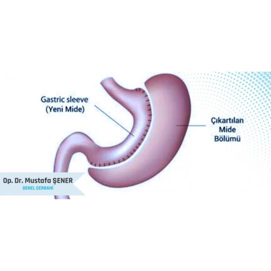 Tüp Mide Ameliyatı (Sleeve Gastrektomi)