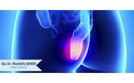 HemoroidHastalığında En İdeal Tedavi Hangisidir?