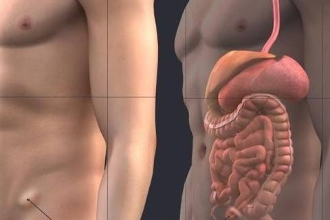 Laparoskopik Kasık Fıtığı Ameliyatı Nedir?